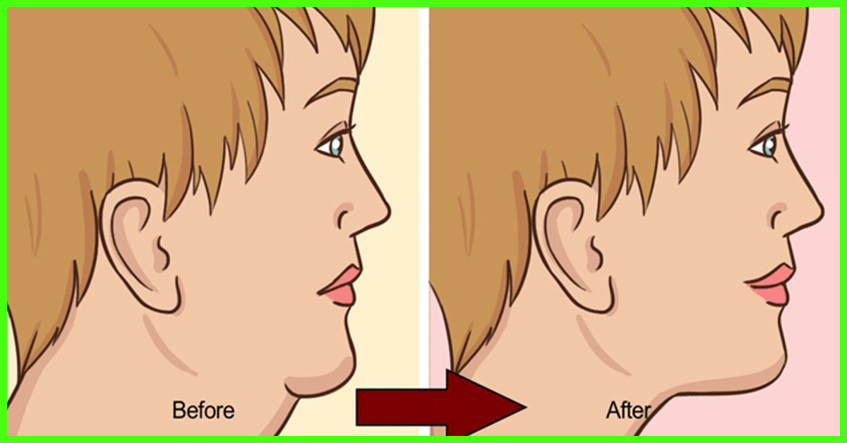 Stylecraze How To Get Rid Of Neck Fat