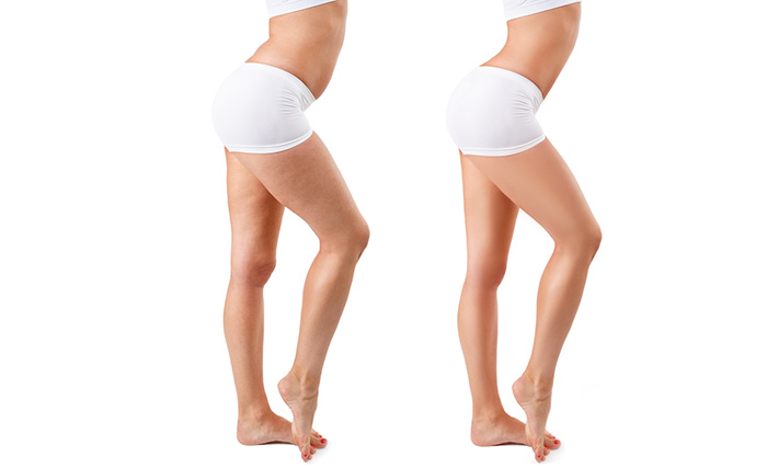 Homemade Body Wraps To Lose Weight