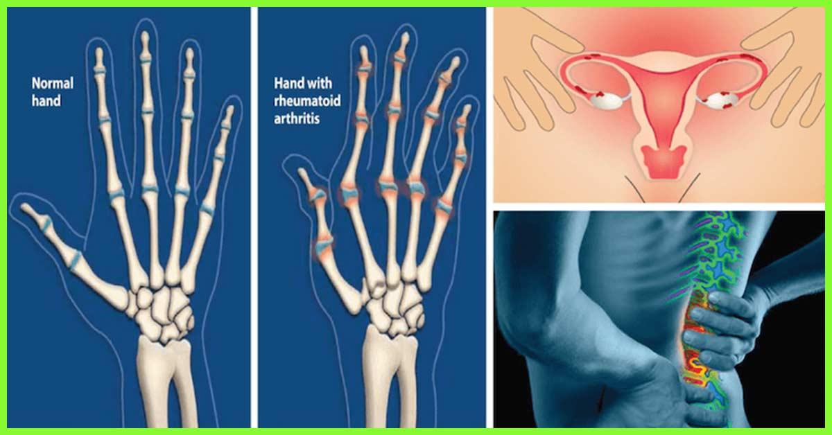 How To Use Castor Oil To Treat Arthritis?