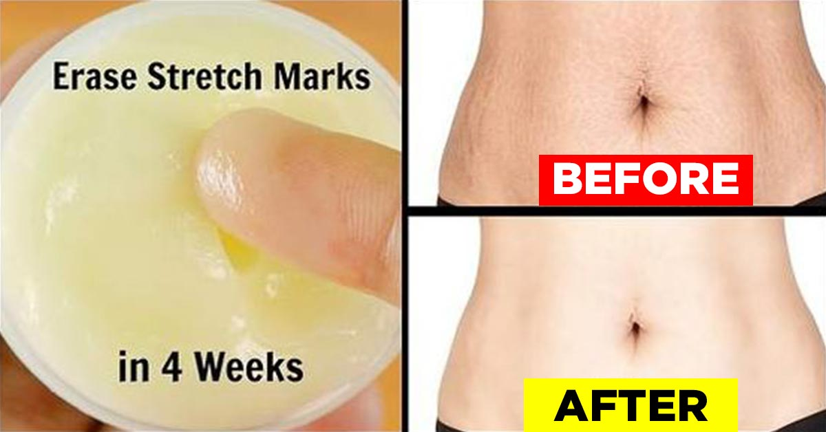 Cream Stretch Marks Special Features