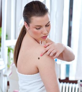 What Is Melanoma Types, Stages, Symptoms, Causes, And Treatment