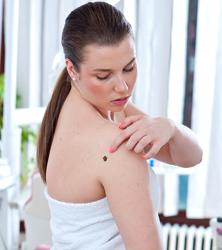 What Is Melanoma? Types, Stages, Symptoms, Causes, And Treatment