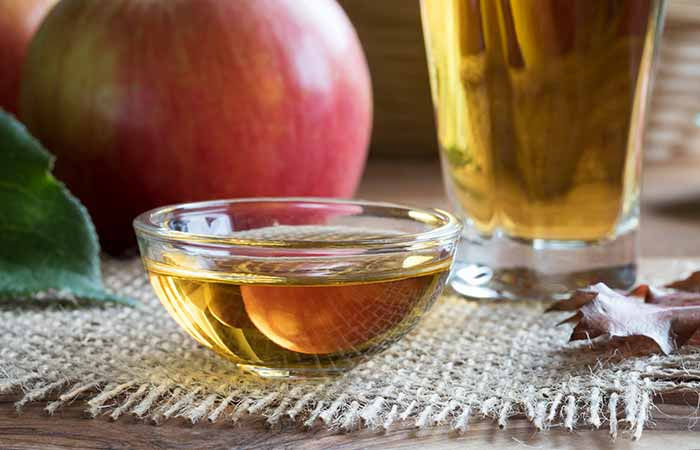 Home Remedies For Cellulitis - Apple Cider Vinegar