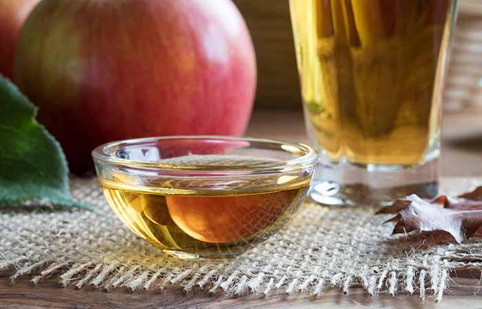 Home Remedies For Cellulitis - Apple Cider Vinegar