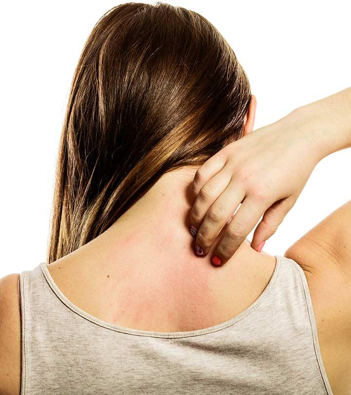 How To Get Rid Of A Skin Rash
