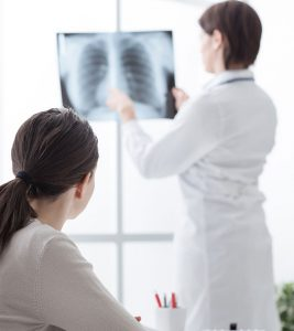 Lung Cancer Information – Types, Stages, Symptoms, And Causes