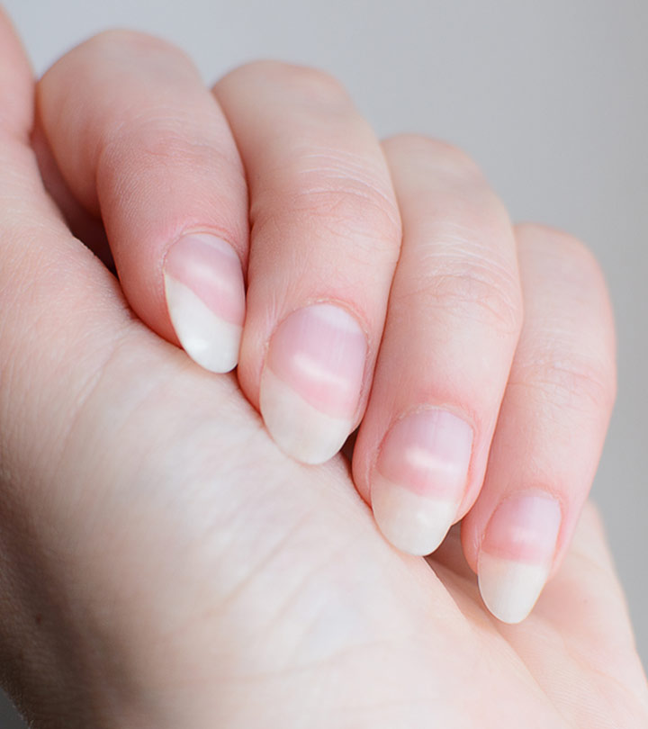 White Spots On The Fingernails Causes And Treatment