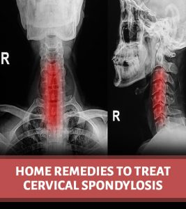 10 Effective Home Remedies To Treat Cervical Spondylosis
