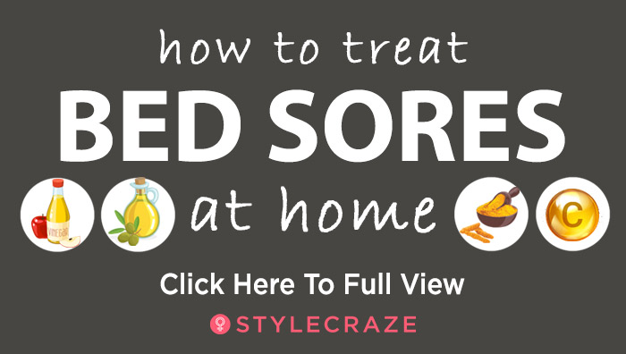 Bed Sores – Symptoms, Causes, Stages, And Treatment