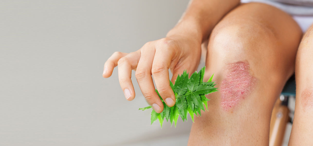 Is-Neem-An-Effective-Cure-For-Eczema