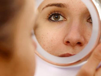 How To Take Care Of Pimples That Are Caused Due To Heat
