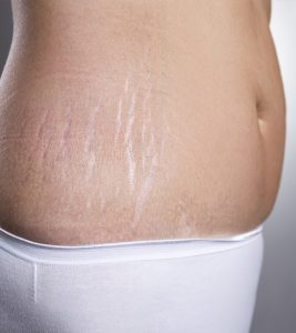 How To Treat Stretch Marks And Loose Skin