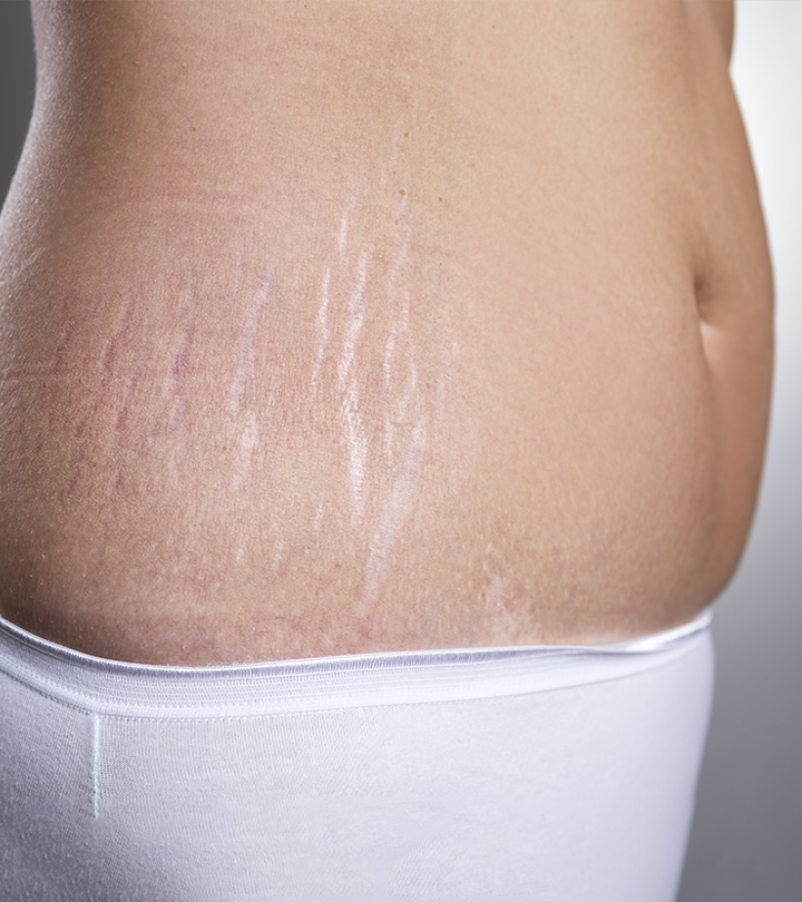 How-To-Treat-Stretch-Marks-And-Loose-Skin