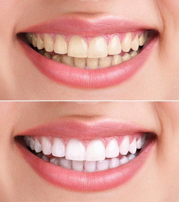 Hydrogen Peroxide For Teeth Whitening 6 Home Remedies To Whiten Teeth