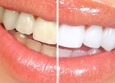 Hydrogen-Peroxide-For-Teeth-Whitening.jpg1