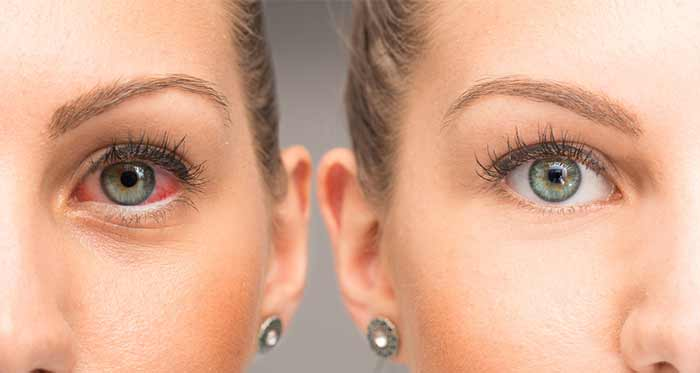 Castor Oil For Eyes - Treats Eye Allergies