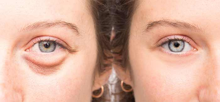Castor Oil For Eyes - Treats Puffy Eyes