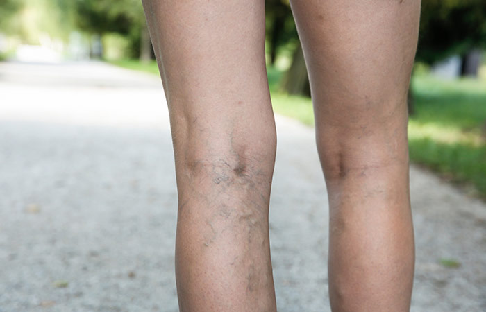What-Are-Varicose-Veins