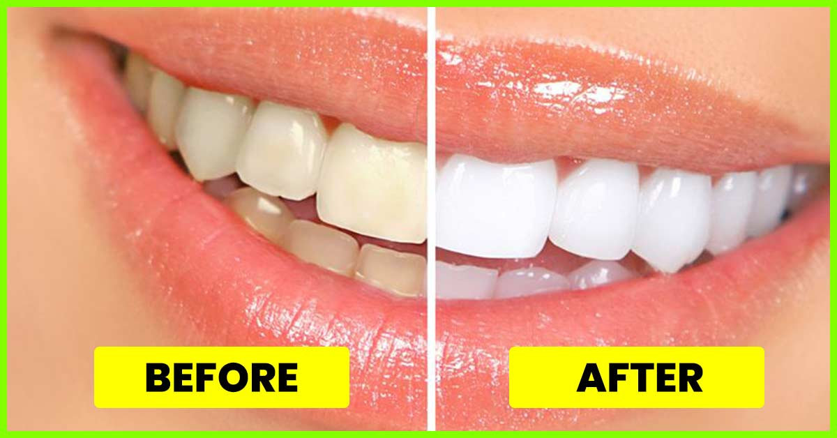 15 Simple Ways To Get White Teeth Overnight