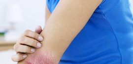 8-Best-Homeopathy-Treatments-For-Psoriasis