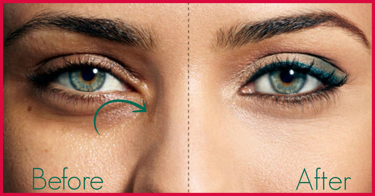 e3ef6c34f342 8 Unusual Tips To Get Rid Of Spectacle Marks Forever!