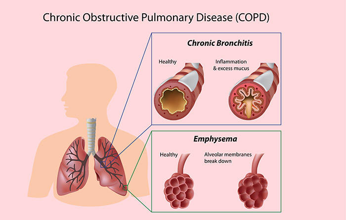 COPD over view