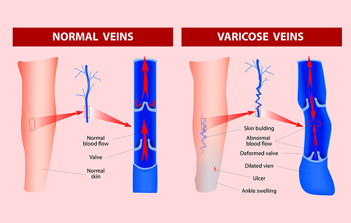 varicose veins pictures pregnancy