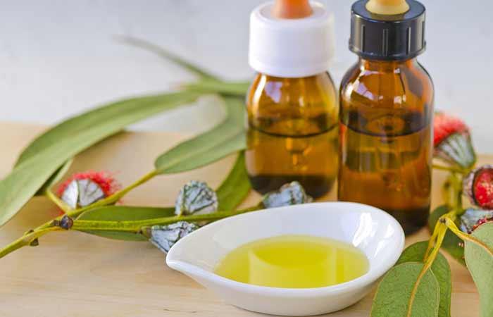 Tinea Versicolor Treatment - Eucalyptus Oil