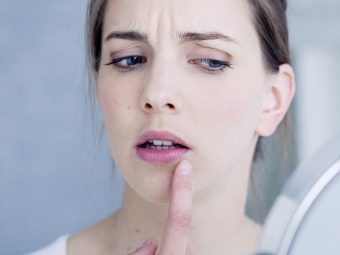 Natural-Remedies-To-Treat-Herpes0