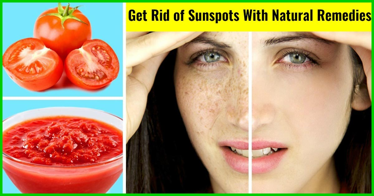 12 Simple Ways To Get Rid Of Sunspots