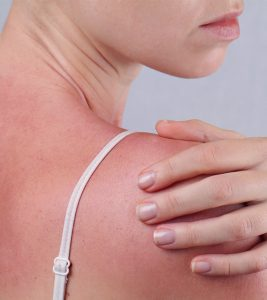 Sun Poisoning: Symptoms, Causes, And Treatment