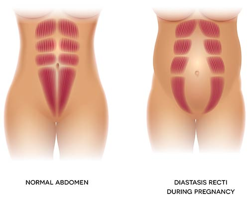 What Causes Diastasis Recti