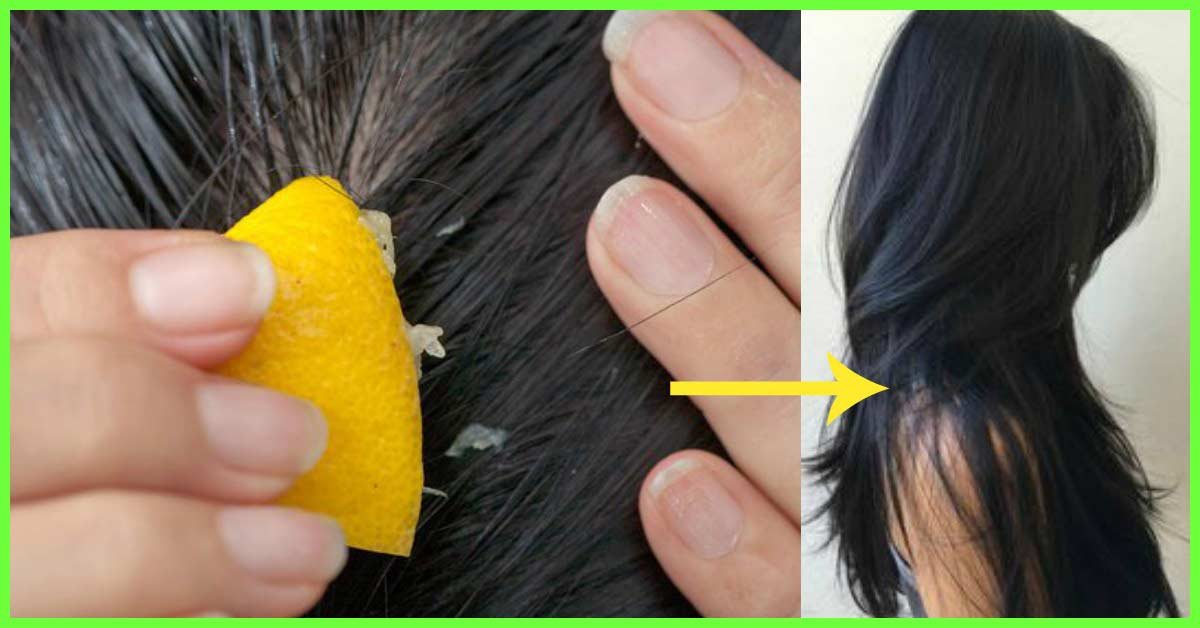 10 Simple Home Remedies To Detox Your Hair