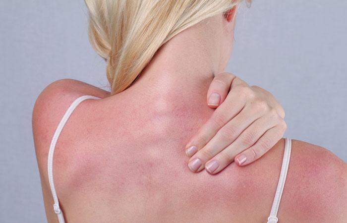 9.-Might-Treat-Sunburns