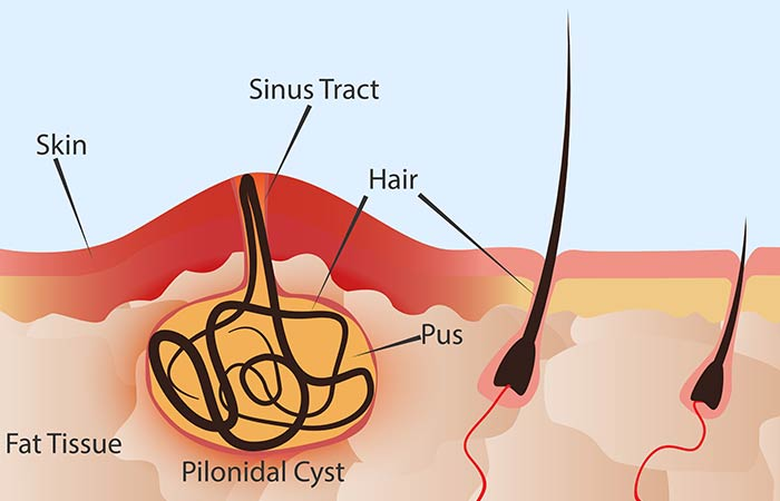 What Are Pilonidal Cysts