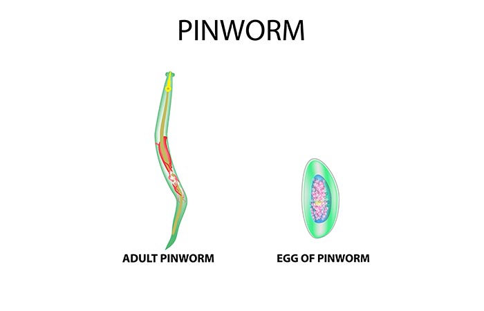 What Are Pinworms