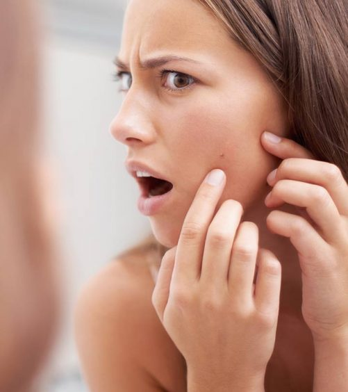 Holistic Pimple Treatment In Bangalore - What, Where & Why