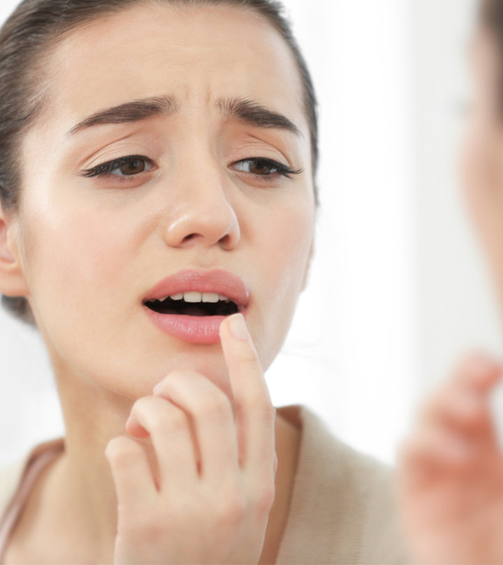 Is Hydrogen Peroxide A Cure For Cold Sores?