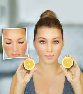 9 Home Remedies To Remove Dark Spots On Face With Lemon Juice