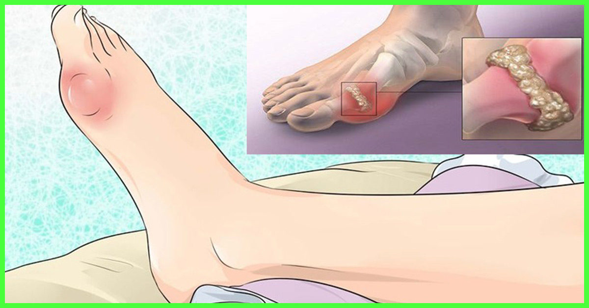 Apple Cider Vinegar For Gout Pain Relief