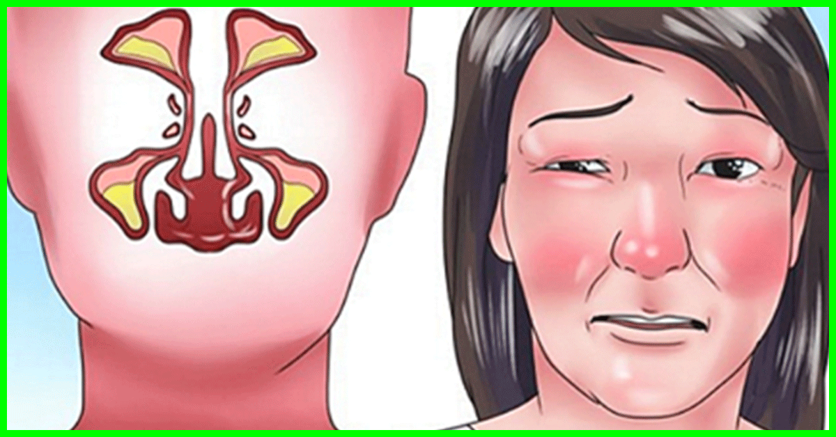 how to clear a stuffy nose fast without medicine