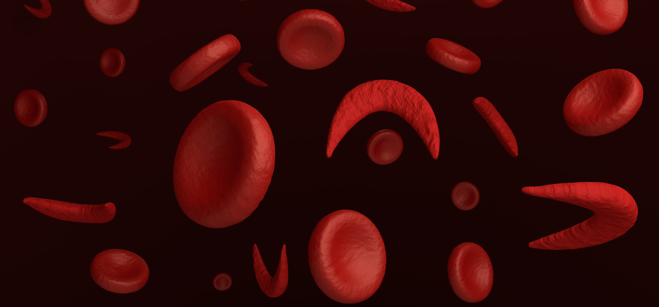 the characteristics and treatment of sickle cell anemia a blood disorder Journal of health, population and  the largest number of newborn babies with the blood disorder being taken care of under  and sickle cell anemia.