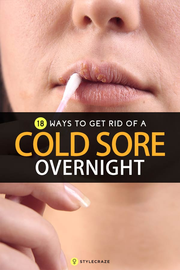 How To Get Rid Of Cold Sores - 19 Effective Ways To Try