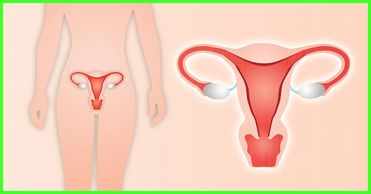 Adenomyosis – Symptoms, Causes, Treatment, And Diet +