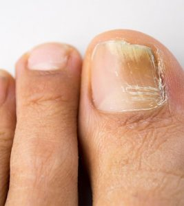 How To Use Hydrogen Peroxide For Nail Fungus – A Step By Step Guide