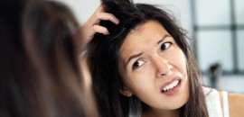 5 Common Questions On Dandruff Answered By Experts