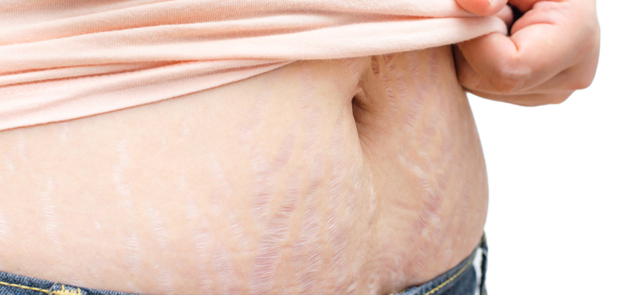 Stretch Marks And Loose Skin