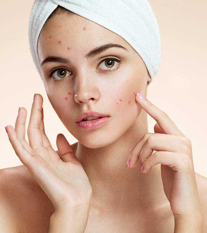 5 Videos Featuring Home Remedies For Everyday Skin Problems