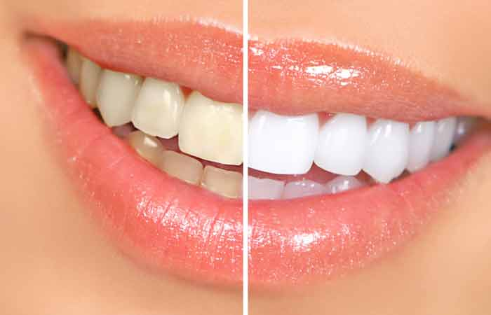 Can-You-Really-Use-Banana-Peels-To-Whiten-Your-Teeth2
