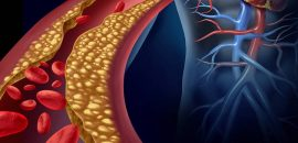 How To Clean Your Arteries Naturally